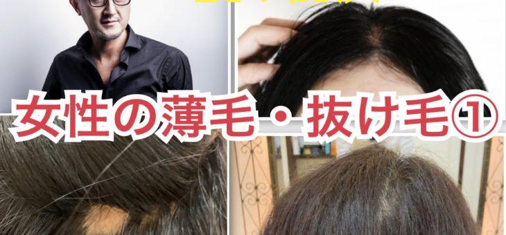 ECLATビューティーチャンネル「女性の薄毛・抜け毛①」